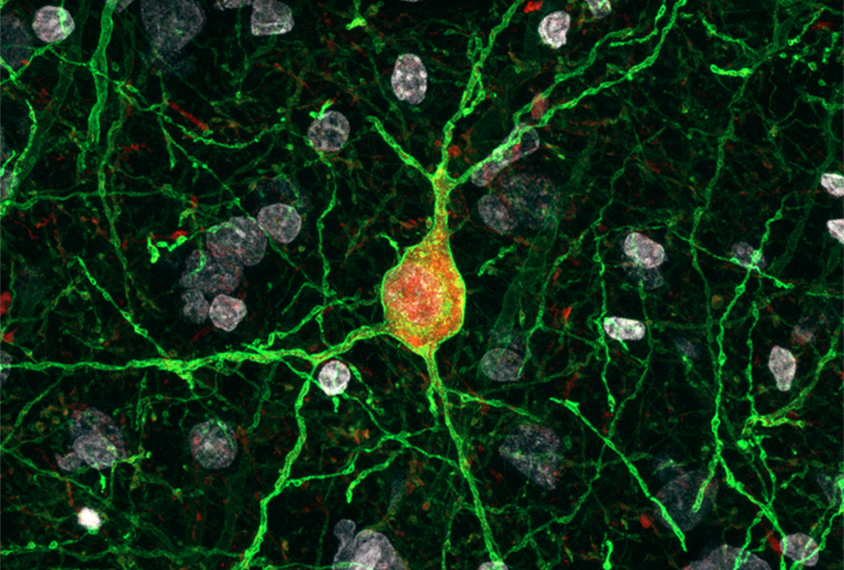 Virus-based method manipulates inhibitory neurons in brains