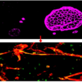 Questions Raised About Widely Used Blood-Brain Barrier Model